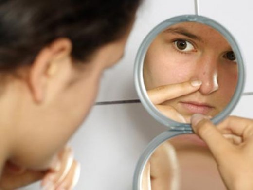 home-remedies-for-acne.jpg