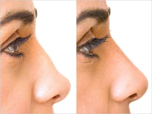 restylane-nose-reshaping-before-after1.jpg